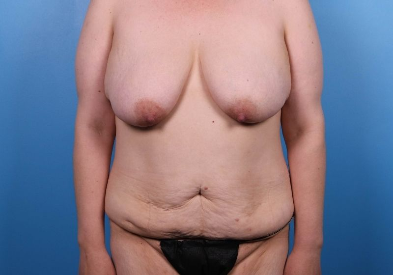 Raleigh Tummy Tuck Surgery Before Procedure Front