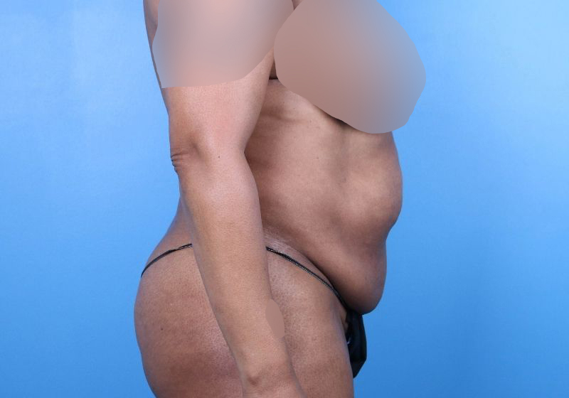 Before Tummy Tuck Surgery Raleigh Profile