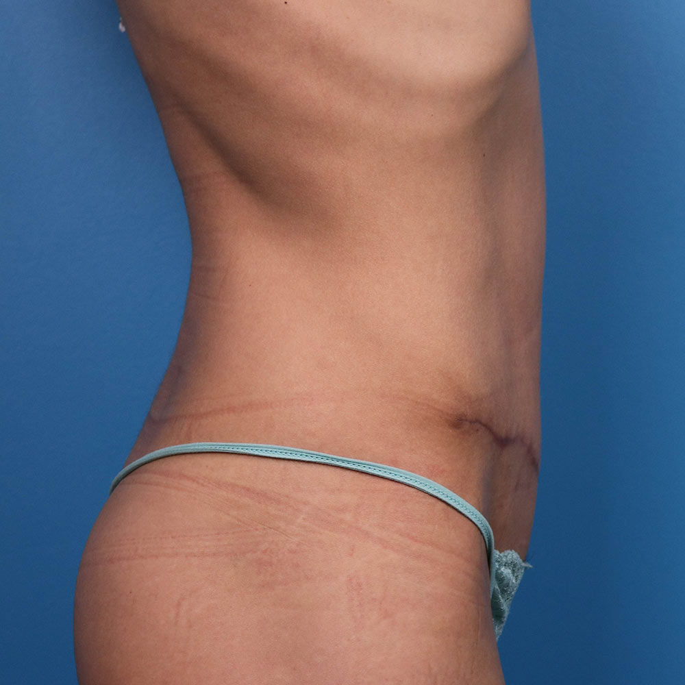 tummy tuck after picture
