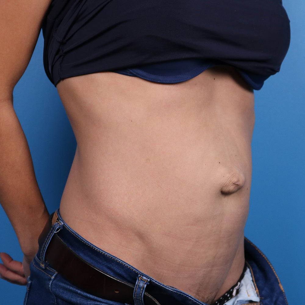 tummy tuck in raleigh