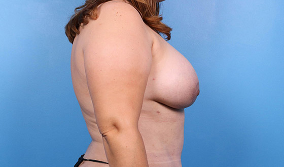 breast implant before and after pictures