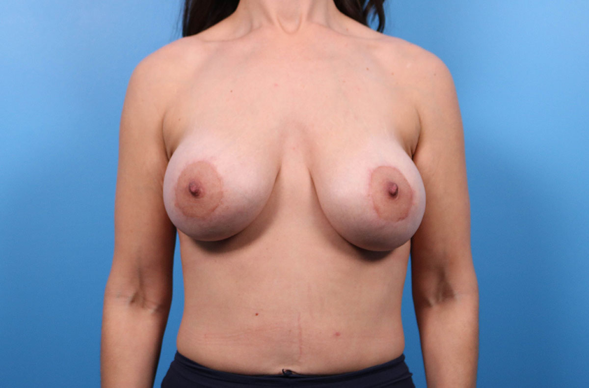 breast implant results in raleigh