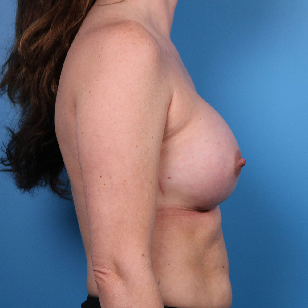 breast augmentation after photos