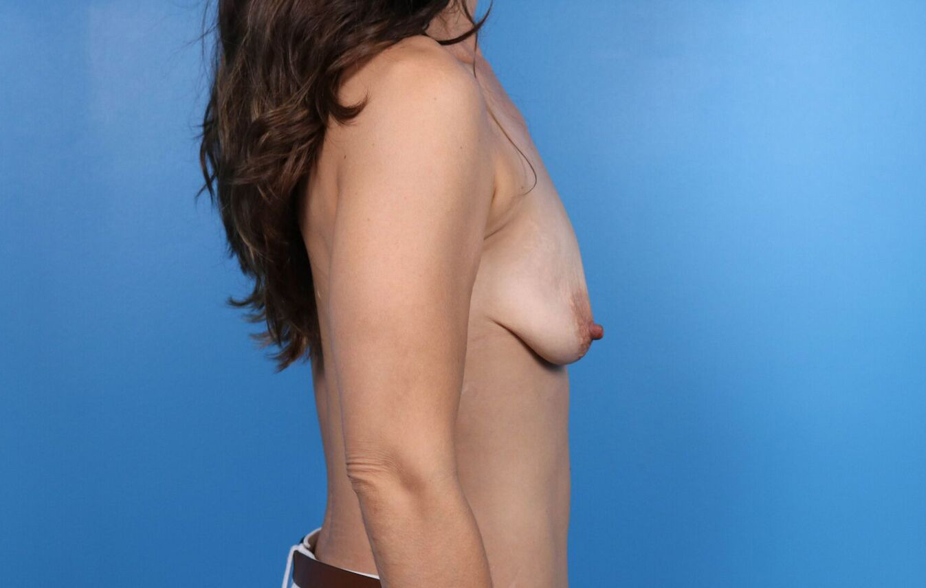 before view of breast implants