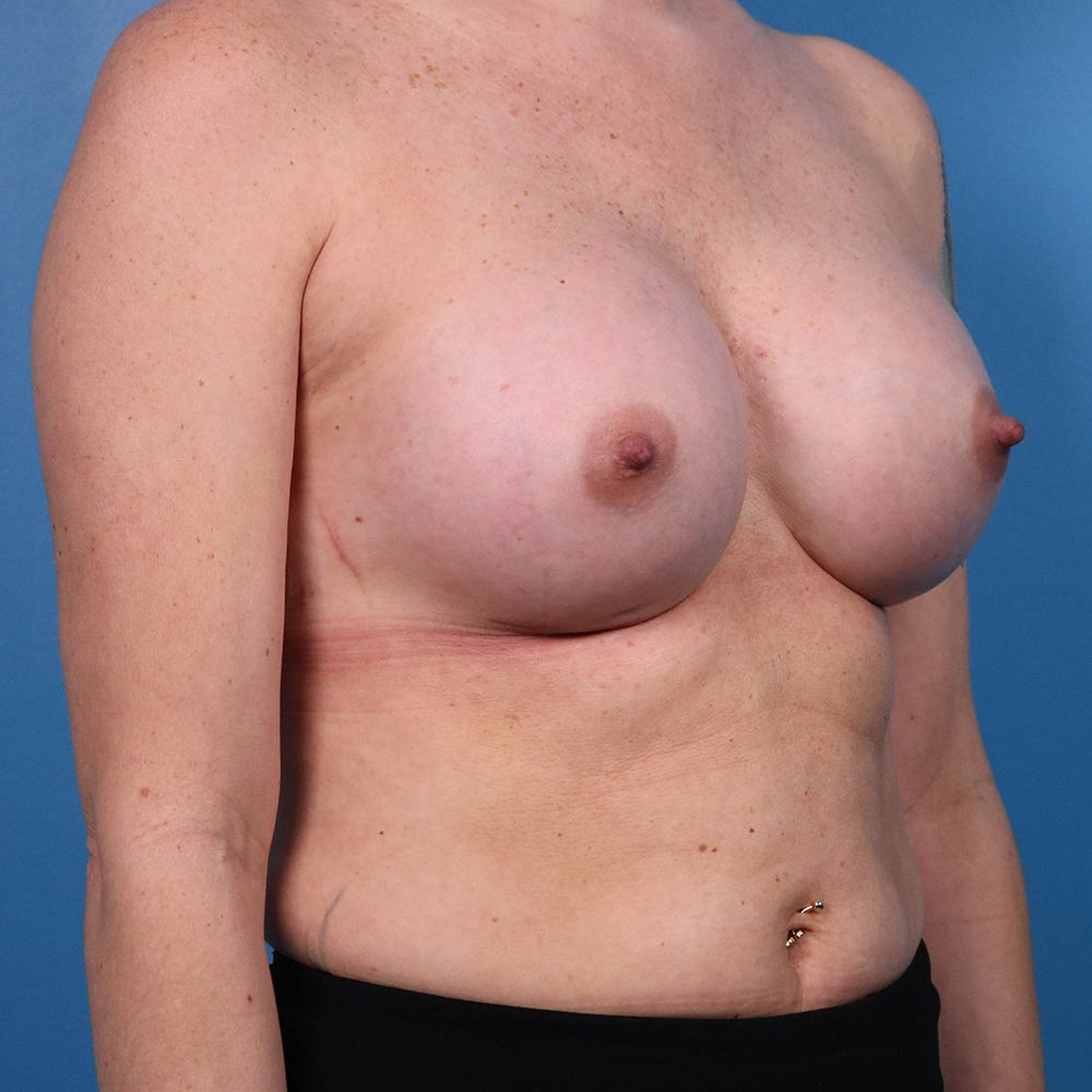 results of breast augmentation in raleigh