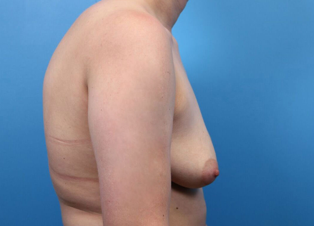 breast implants in raleigh