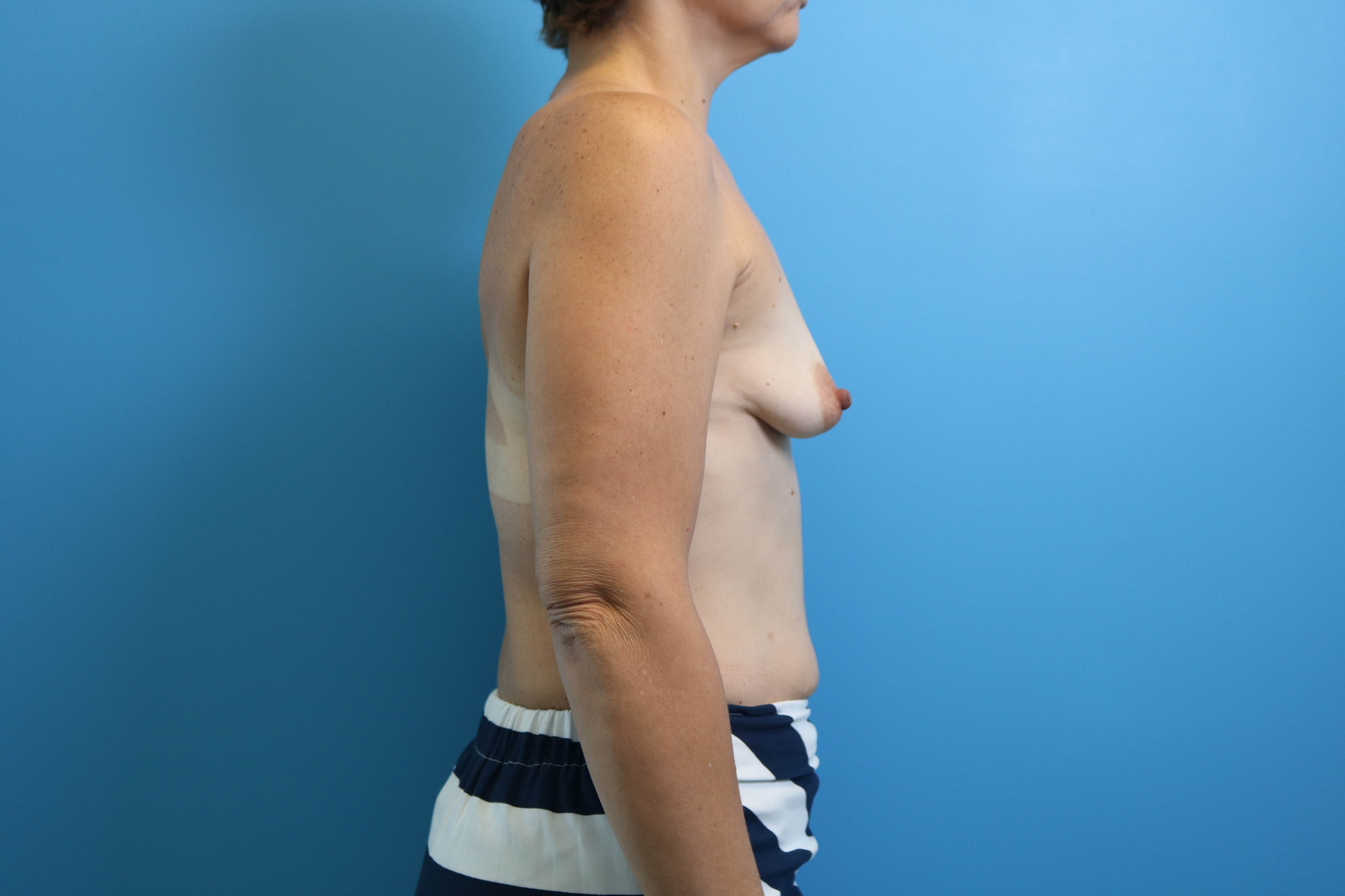 before image of breast aug procedure