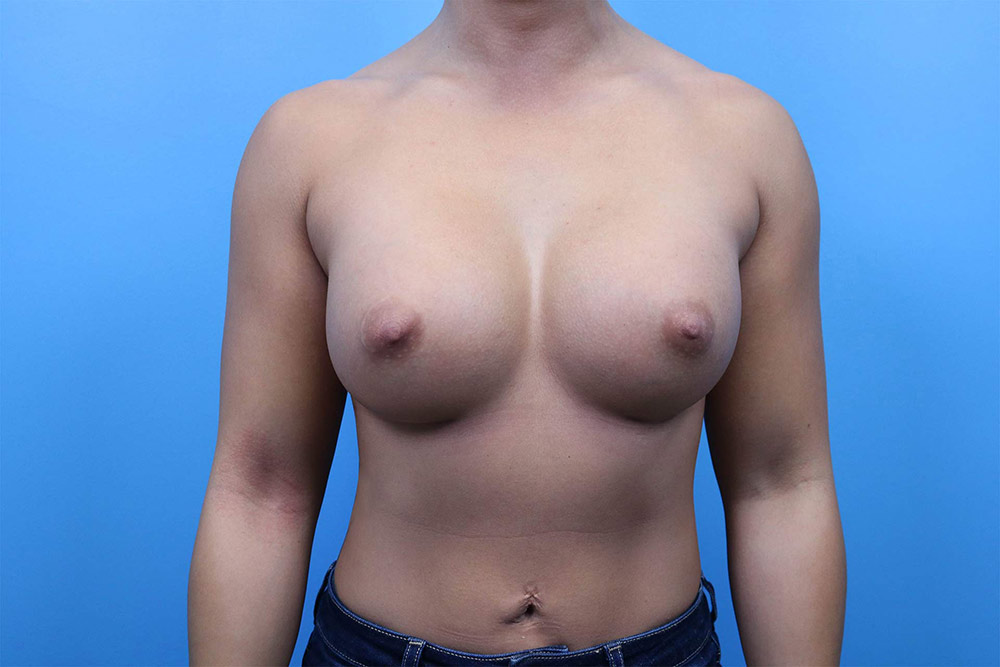 breast implant revision results raleigh