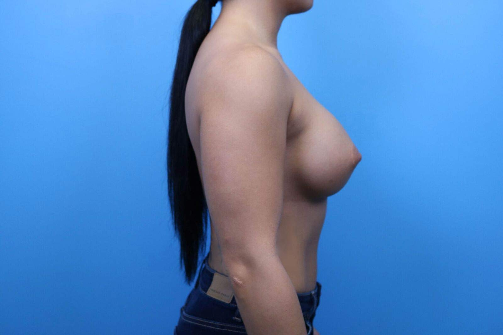 raleigh breast implant revision surgery
