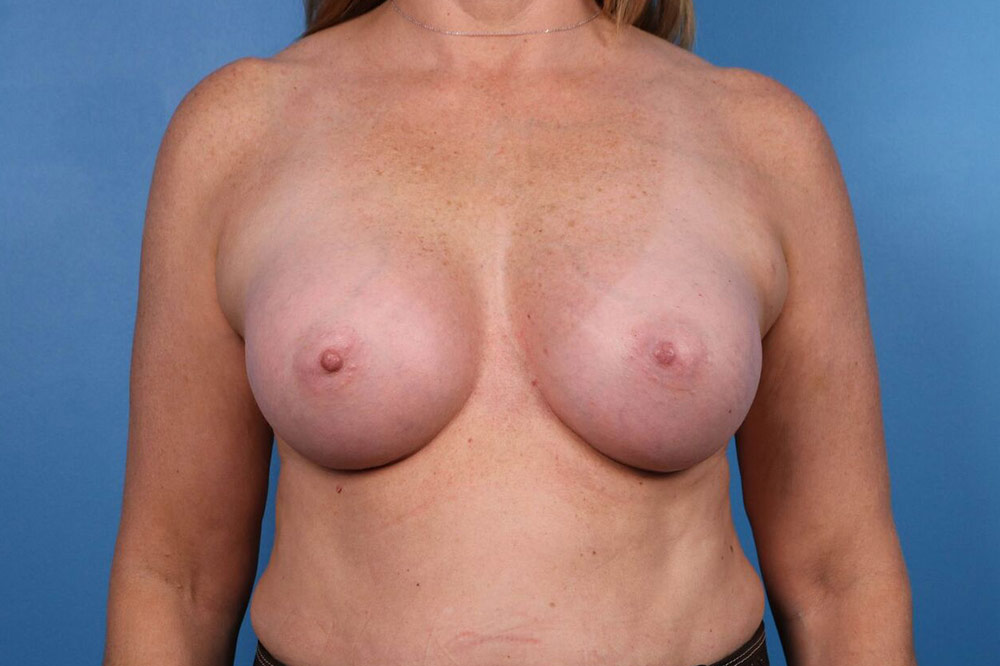 breast implant after photos