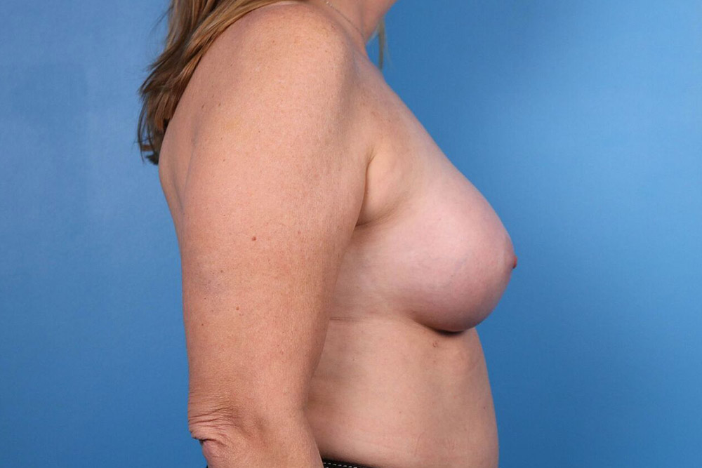results of breast implants in raleigh