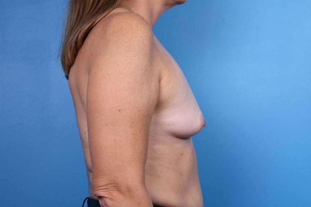 breast implant patient in raleigh