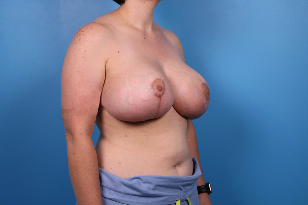 breast lift plastic surgery in raleigh