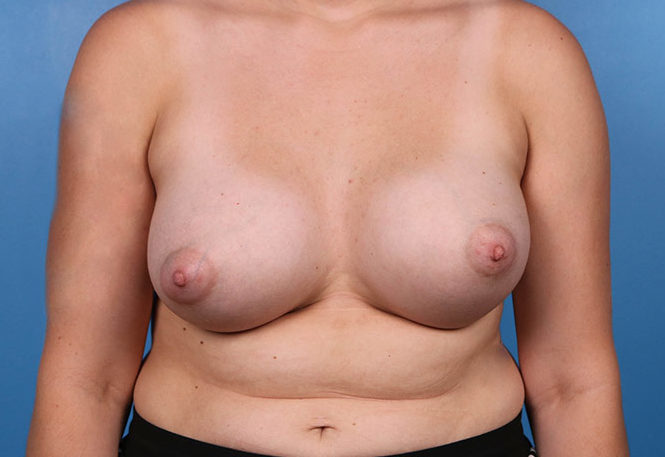 breast augmentation after pictures