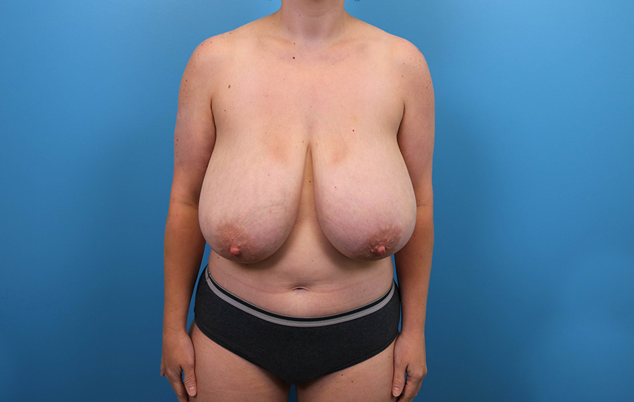 breast lift surgery in raleigh