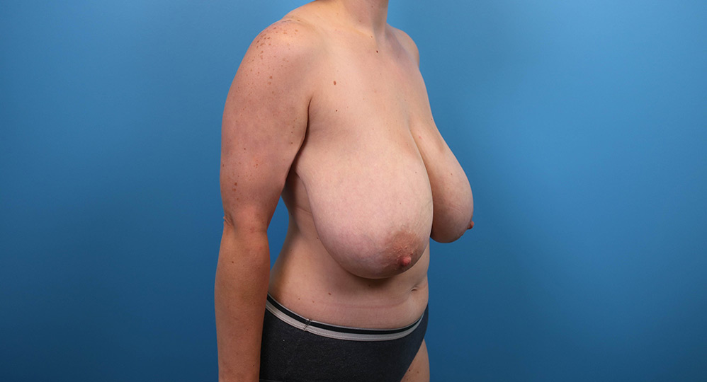 raleigh breast lift surgery