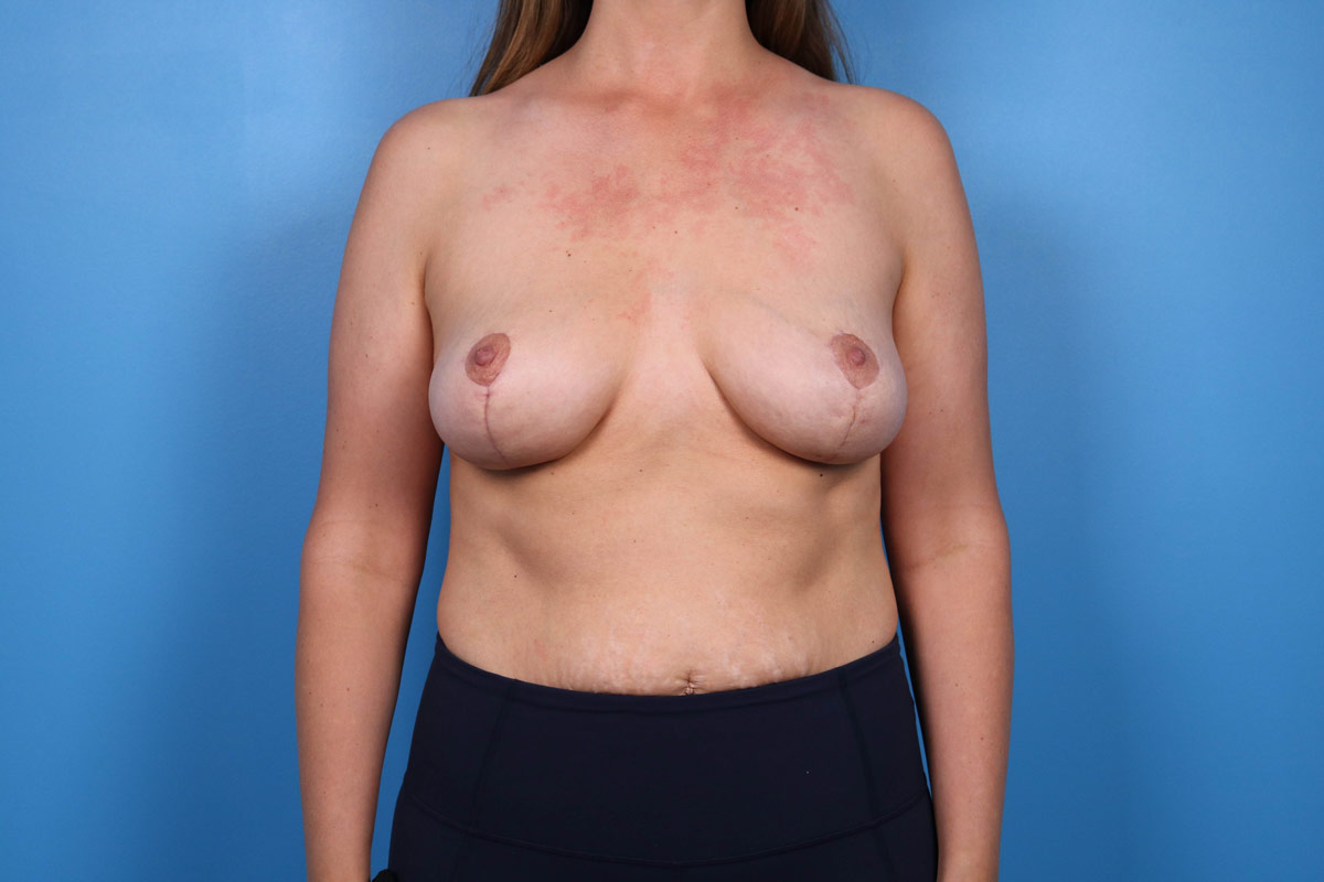 results from breast lift surgery in raleigh