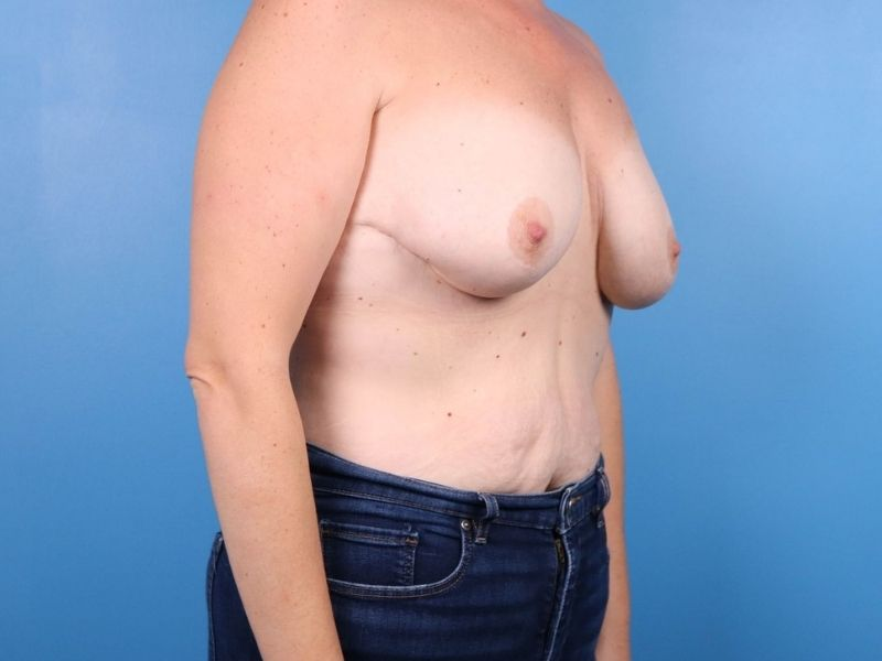 raleigh breast revision surgery before- side