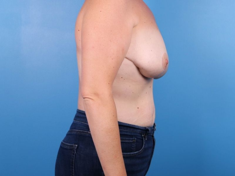 raleigh breast revision surgery before profile