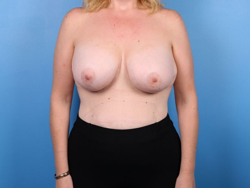 raleigh breast revision surgery after