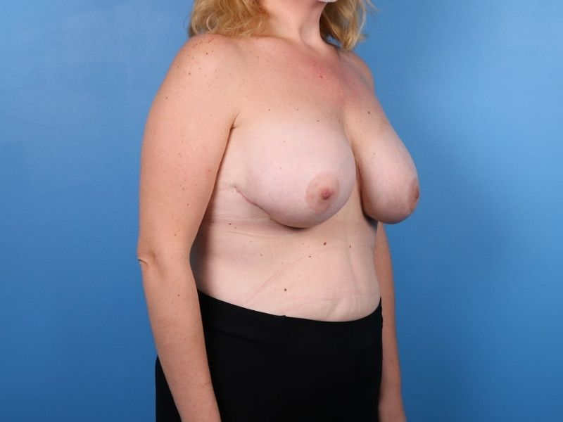 raleigh breast revision surgery after- side