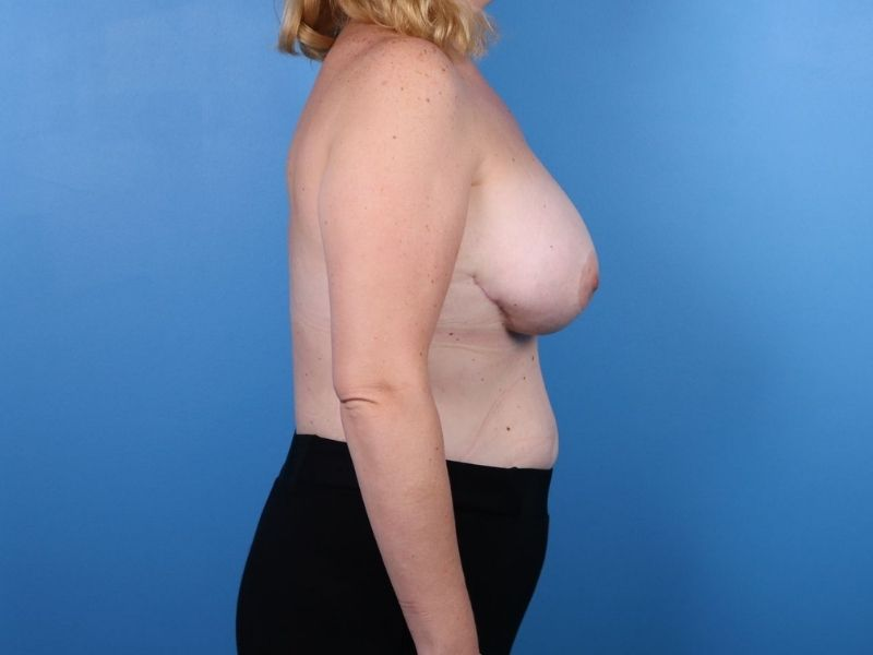 raleigh breast revision surgery after side