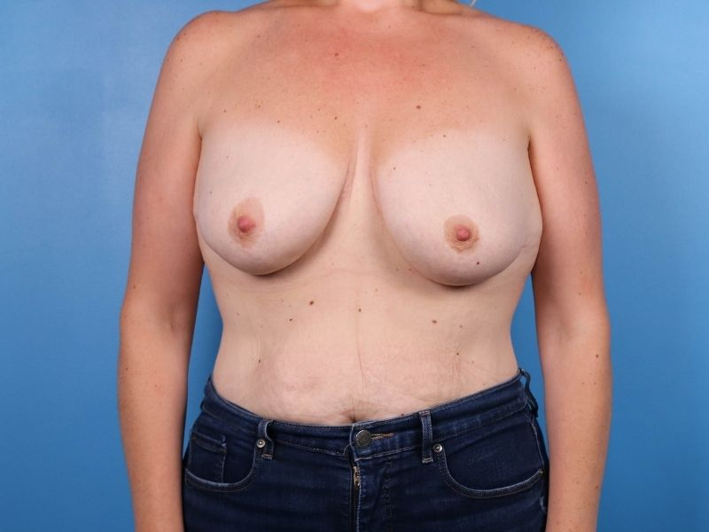 raleigh breast revision surgery before