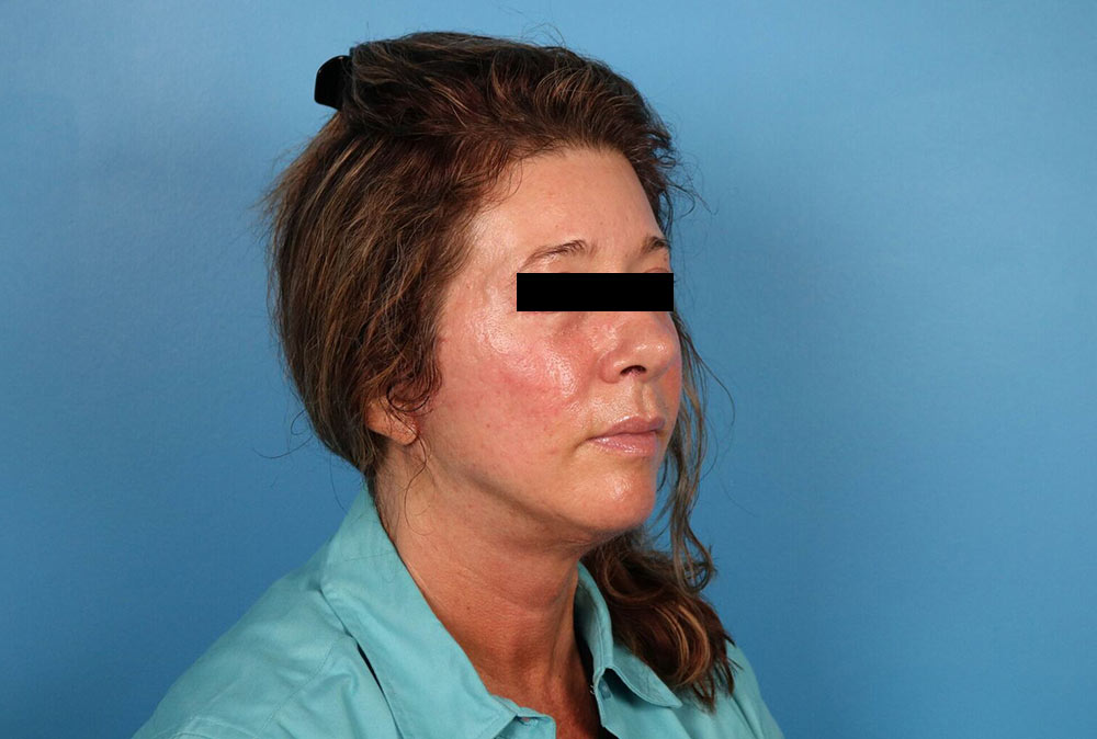 facelift results in raleigh