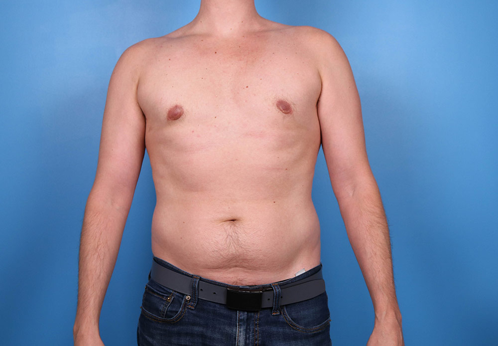 gyno results in raleigh