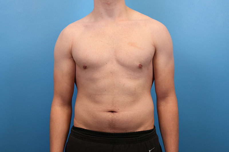 male breast reduction results in raleigh