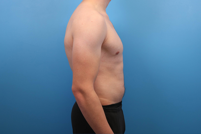 gyno surgery in raleigh