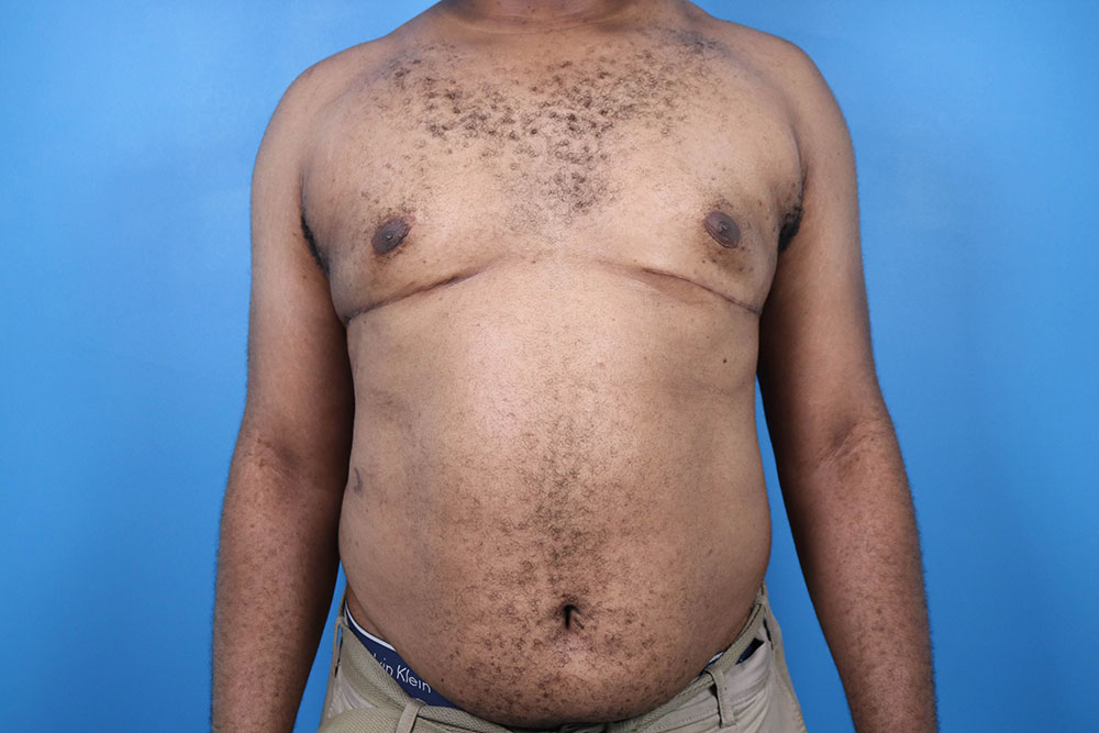 gyno surgery before and after