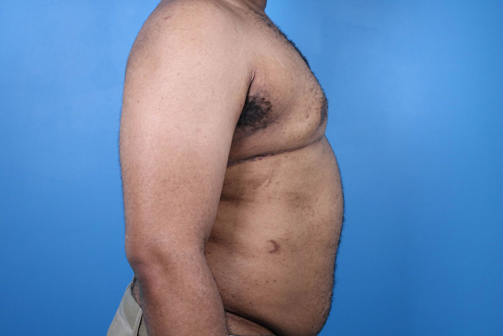male breast reduction in raleigh