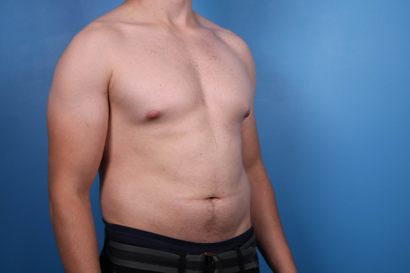 gyno patient before and afters