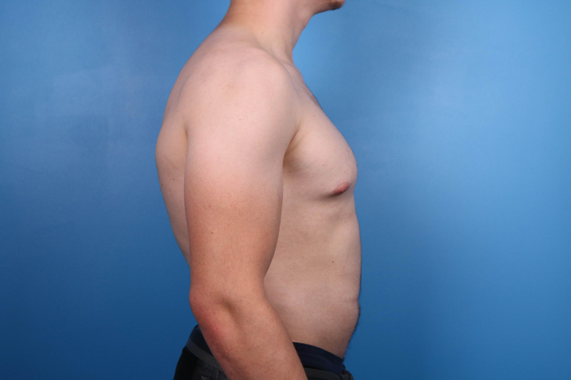 male breast reduction patient in raleigh