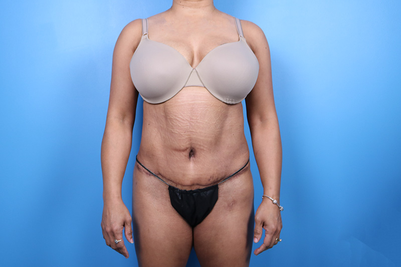 liposuction patient in raleigh