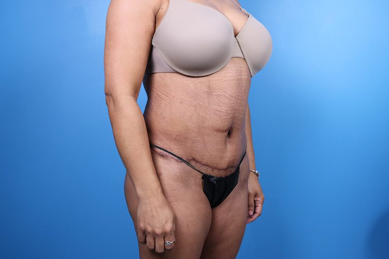 liposuction results photos