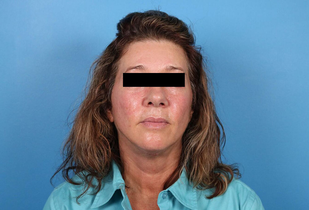 neck lift surgery results in raleigh