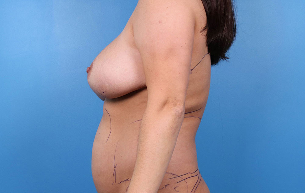 breast lift results