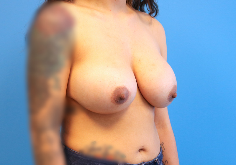 Breast Augmentation Surgery Raleigh After angle