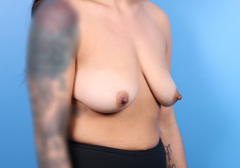 Breast Augmentation Surgery Raleigh Before Angle