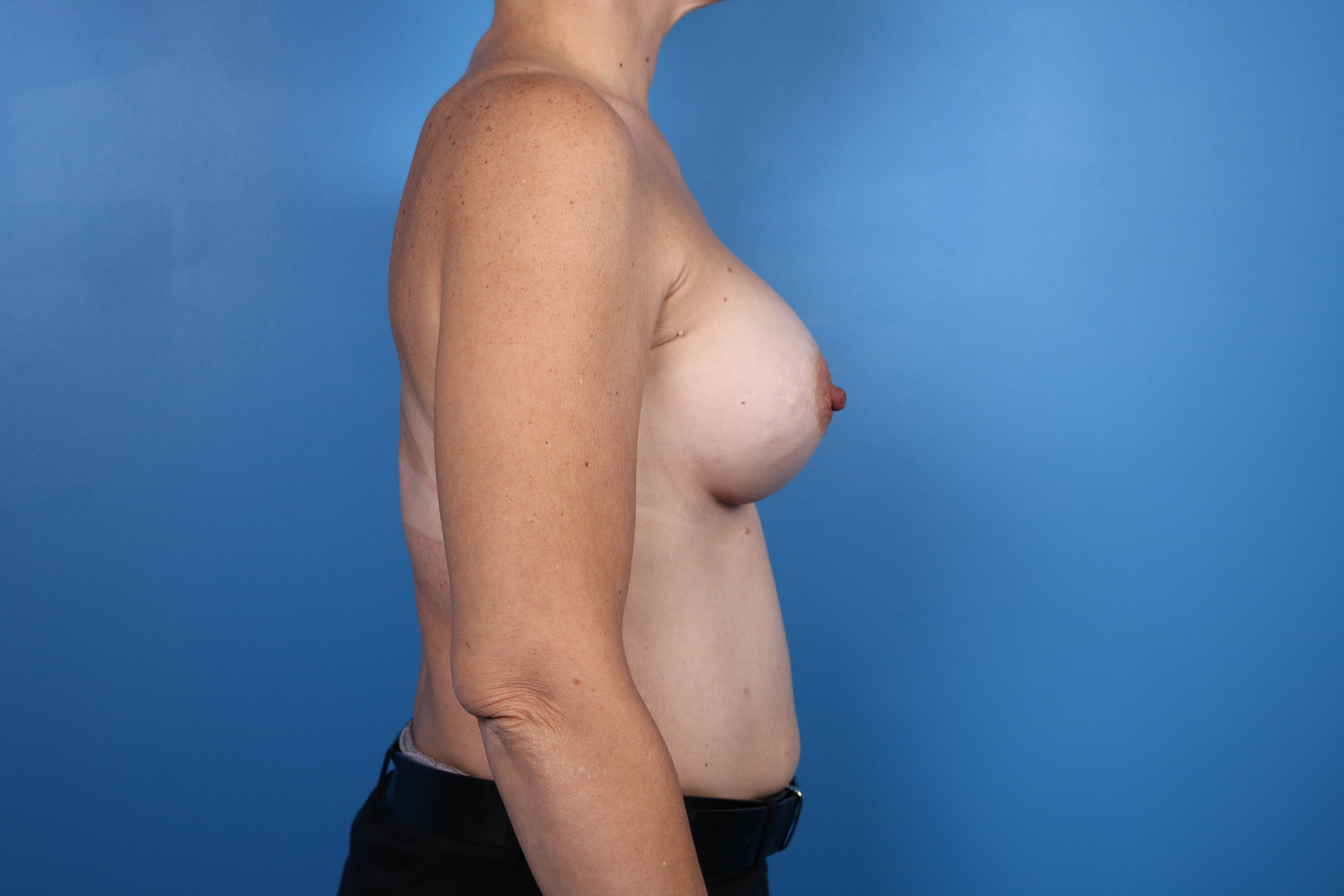 results from a breast implant procedure