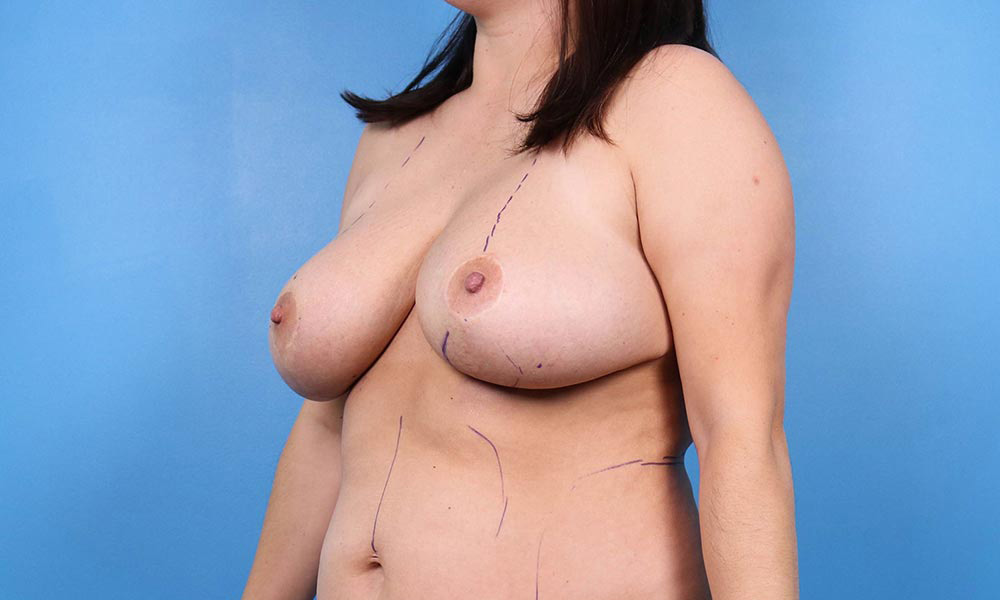 north raleigh breast lift before and after
