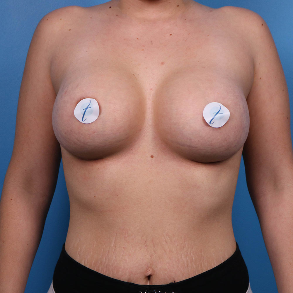 raleigh breast augmentation results