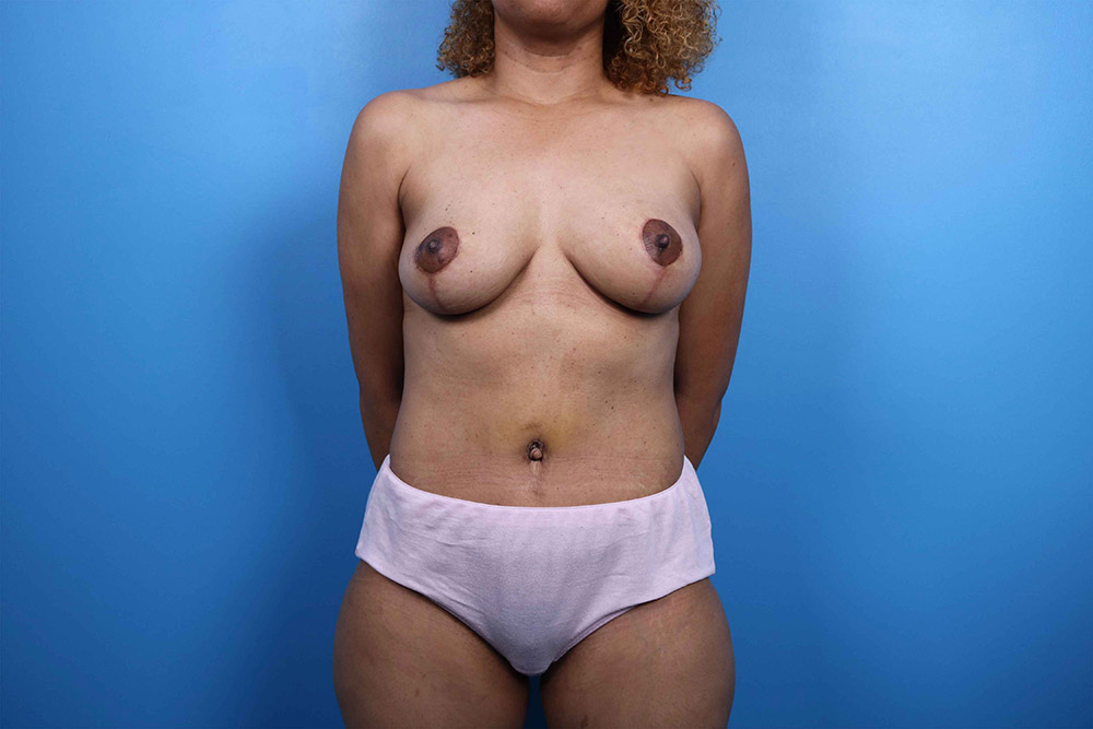 raleigh breast lift surgery results