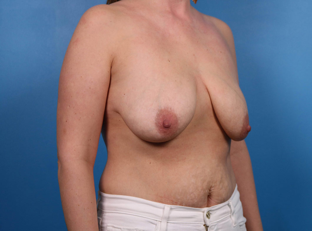 breast lift in raleigh