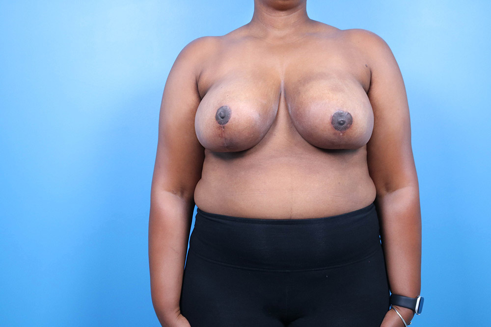 breast reduction surgery raleigh