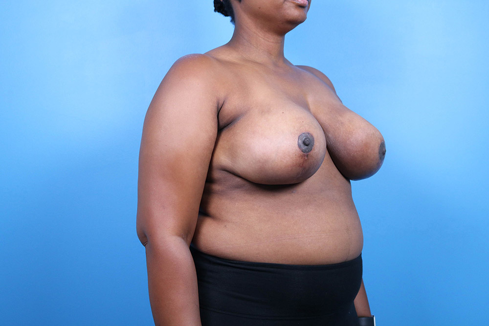 breast reduction surgery in raleigh