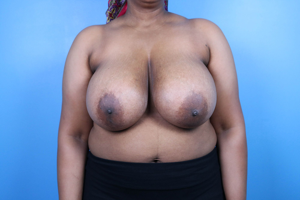 breast reduction plastic surgery raleigh