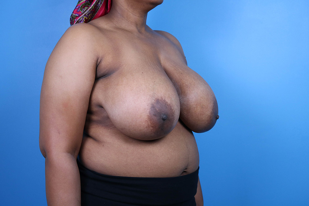 breast reduction plastic surgeon raleigh